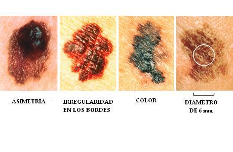 Cancer: El cancer de piel